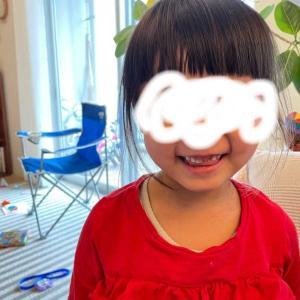 娘の破折した前歯の話。