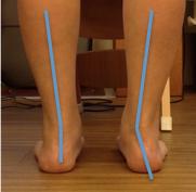 お体の不調が治らない本当の原因は足首にある!
