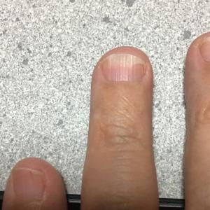 薬指の爪がなくなりそうです。