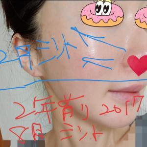 ビョン先生のフェイスラインと骨の手術