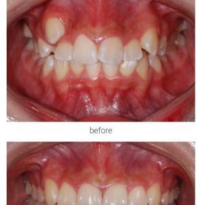 ANBI歯科の副院長のユン先生の症例と韓国クリニック
