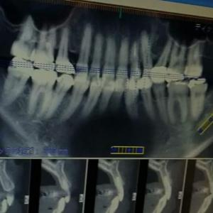 アン先生の見えない歯科チェックしてますか?