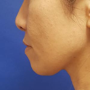 受け口を顎の整形したかのように形成