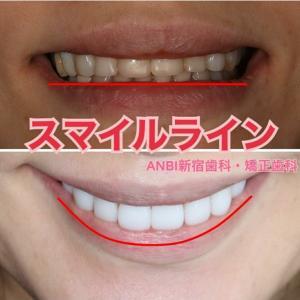 歯の大きさも重要ポイント@アン先生