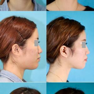 アゴ削り(Vライン形成)、隆鼻術(シリコンプロテーゼ)、ショートフェイスリフト、ネックリフトのパーツモニターさま