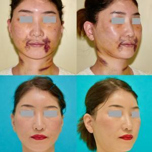 ショートフェイスリフト、ネックリフト、フェイスライン脂肪吸引の腫れの経過