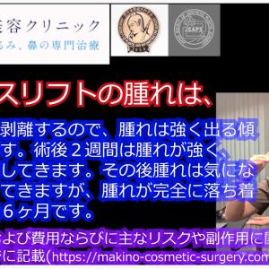 動画コンテンツ フェイスリフト
