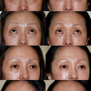 下眼瞼たるみ取り(経結膜ハムラ法)のパーツモニターさま 術後2ヶ月