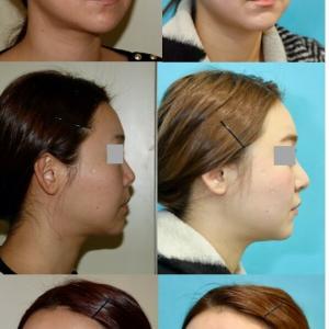 鼻中隔延長術、隆鼻術(シリコンプロテーゼ)のパーツモニターさま 術後5ヶ月