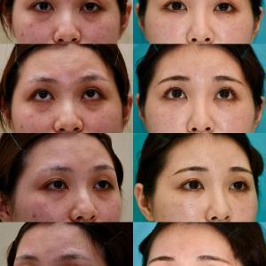 下眼瞼たるみ取り(経結膜ハムラ法)、脂肪注入のパーツモニターさま 術後14ヶ月