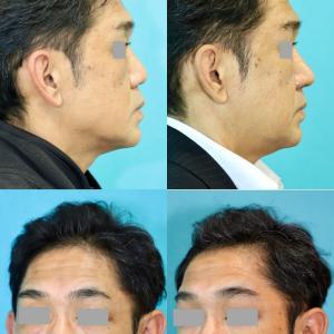 鼻中隔延長術、左鼻孔縁形成術パーツモニターさま 術後4ヶ月