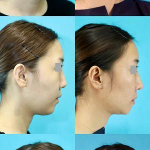 鼻中隔延長術 前額・頬脂肪注入 フェイスライン脂肪吸引 アゴ削り パーツモニターさま 術後7ヶ月