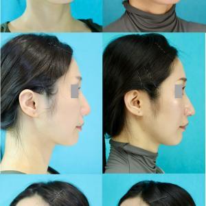 鼻中隔延長術、鼻プロテーゼ抜去、鼻尖軟部組織移植、鼻翼軟骨移植、鼻翼挙上術 パーツモニターさま 術後10ヶ月