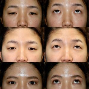 経結膜眼瞼下垂症手術、二重埋没法 パーツモニターさま 術後1ヶ月
