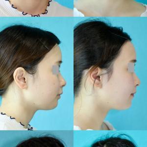 鼻尖縮小術 パーツモニターさま 術後3ヶ月