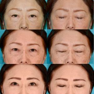 眼瞼下垂症手術、下眼瞼経結膜ハムラ法、眉毛下切開 パーツモニターさま 術後3ヶ月