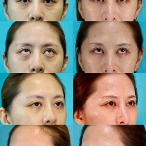 下眼瞼経結膜ハムラ法 パーツモニターさま 術後5ヶ月