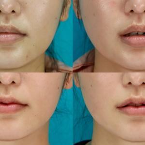 口唇縮小術(口唇形成術) パーツモニターさま 術後1.5ヶ月