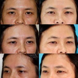 下眼瞼経結膜ハムラ法 パーツモニターさま 術後3年8ヶ月