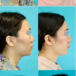 鼻中隔延長術、隆鼻術(シリコンプロテーゼ) パーツモニターさま 術後6ヶ月