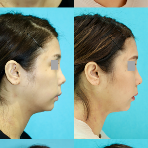 鼻尖移植軟骨除去 軟部組織移植 パーツモニターさま 術後7ヶ月