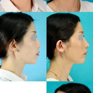 鼻中隔延長術、隆鼻術(オーダーメイドシリコンへ入替え) パーツモニターさま 術後8ヶ月