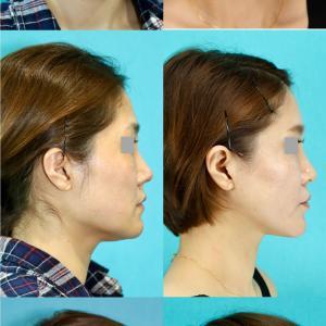 フェイスリフト、頬骨削り、エラ削り パーツモニターさま 術後14ヶ月
