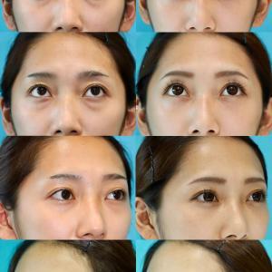 下眼瞼経結膜ハムラ法 パーツモニターさま 術後3ヶ月