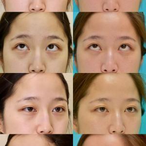 下眼瞼経結膜ハムラ法 ヒアルロン酸注入 パーツモニターさま 術後3ヶ月