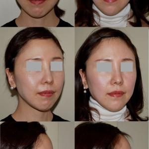 顎のヒアルロン酸のパーツモニターさま