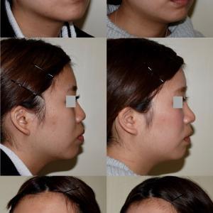鼻中隔延長術のパーツモニターさま 術後8ヶ月