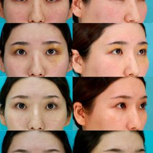眉毛下切開(上眼瞼リフト)のパーツモニターさま 術後6ヶ月