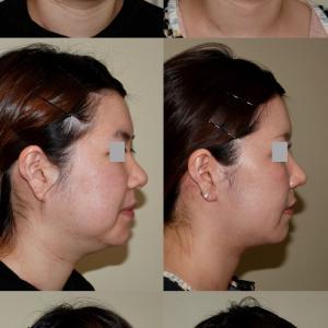 フェイスリフト、ネックリフト、脂肪吸引、鼻尖縮小術 術後6ヶ月