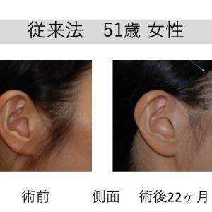 質問にお答えします(▰˘◡˘▰) フェイスリフトの傷あと 耳珠辺縁切開