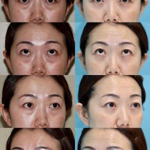 下眼瞼たるみ取り(経結膜ハムラ法)のパーツモニターさま 術後10ヶ月