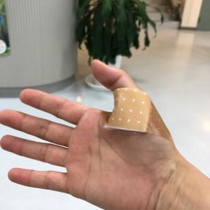 右手 親指 バネ指 4回目のケナコルト注射