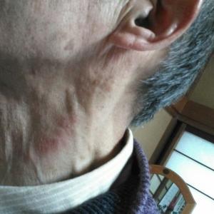 ●左の顔、首のかゆみ!背中全体のかゆみ!両足の痒み!  新潟うだ自然形体健康院