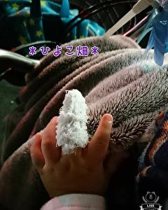 次男・指の火傷の経過