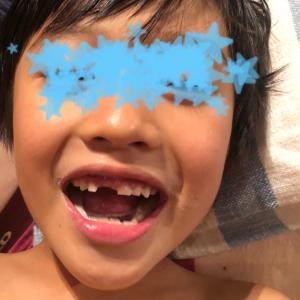 息子の歯と頭痛 その後