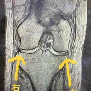 MRIの結果 半月板に傷がある!?
