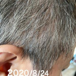 白髪が出来3つの要因