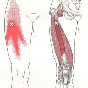 右脚痛は筋筋膜性疼痛症候群(MPS)??