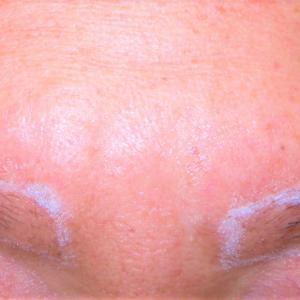 2nd eyebrow reconstruction