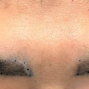 眉毛植毛の経過です。