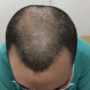 6日後の採取部頭皮の画像