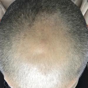 FUE植毛症例
