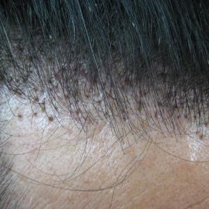 人工毛植毛の考え方