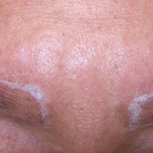眉毛植毛8か月の経過です