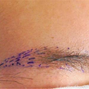 眉毛症例2021年8月その2