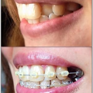 矯正して半年…前歯が出てきているような?(質問お答え)
